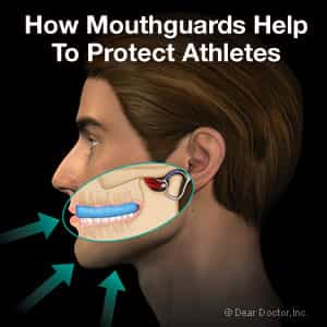 Picture of how mouth guards help to protect athletes