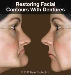 Restoring Facial Features with Dentures