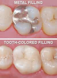 Picture of Metal Filling and Tooth Colored Filling