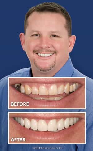 Picture of Before and After Smile Makeover Castle Rock CO