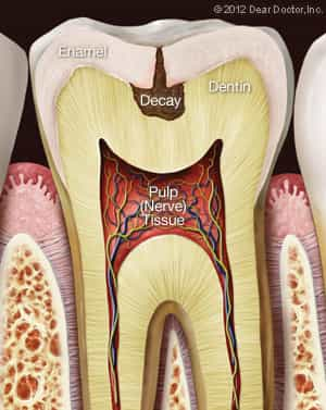 Picture of inside a tooth with decay - toothache treatment castle rock co